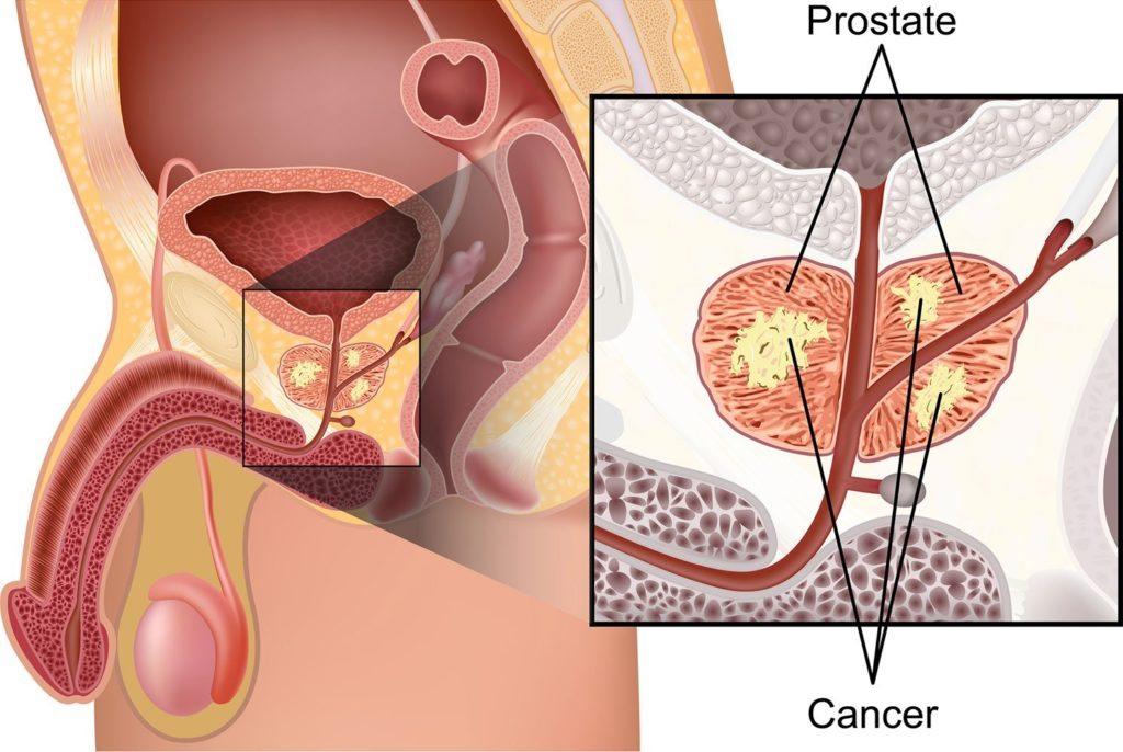 Лечение простатита в санатории форум