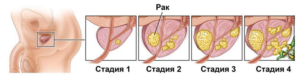 Какие органы подвергаются поражению атипичными клетками?