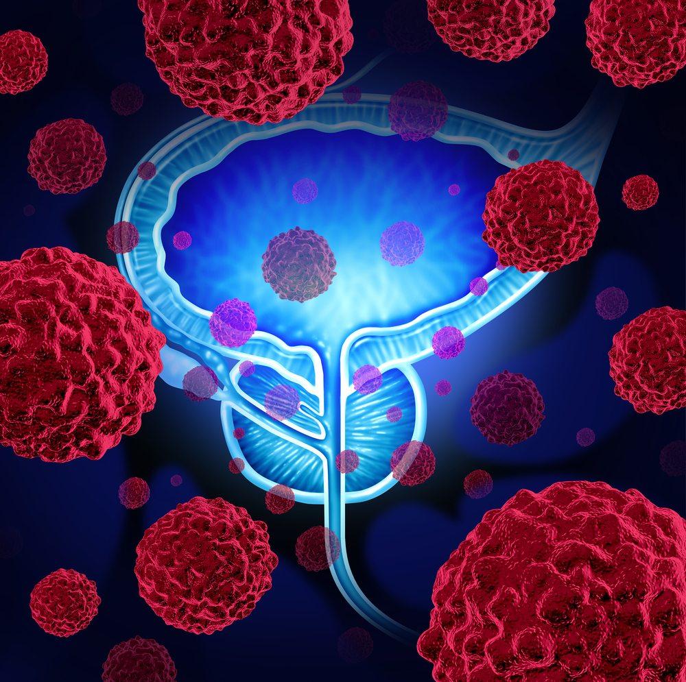 Диагностические мероприятия при метастазирующей форме рака простаты