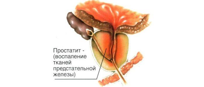 Хронический абактериальный простатит как лечить