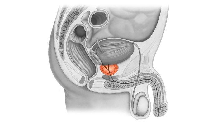 Лечение простатита азитромицином