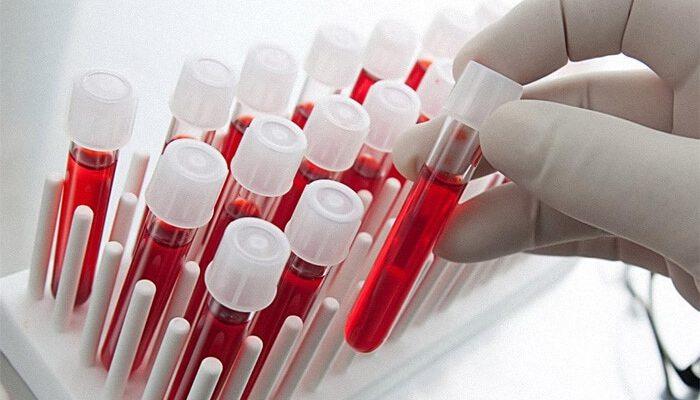 Лечение аденомы простаты цена
