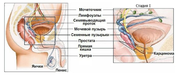 Рак предстательной железы 1 степени