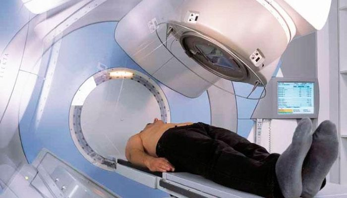 Лучевая терапия при раке простаты
