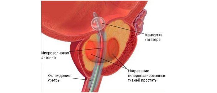 Термотерапия при простатите
