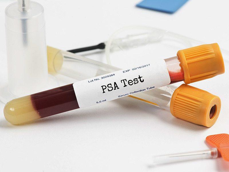 Ложноположительный анализ на гепатит b