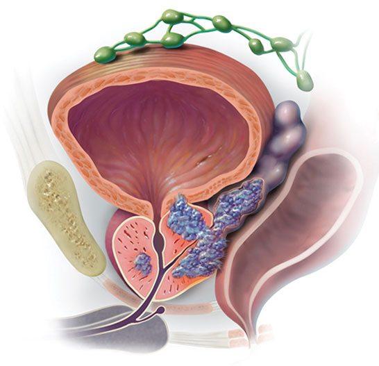 Фокальная криоаблация продолжительной железы