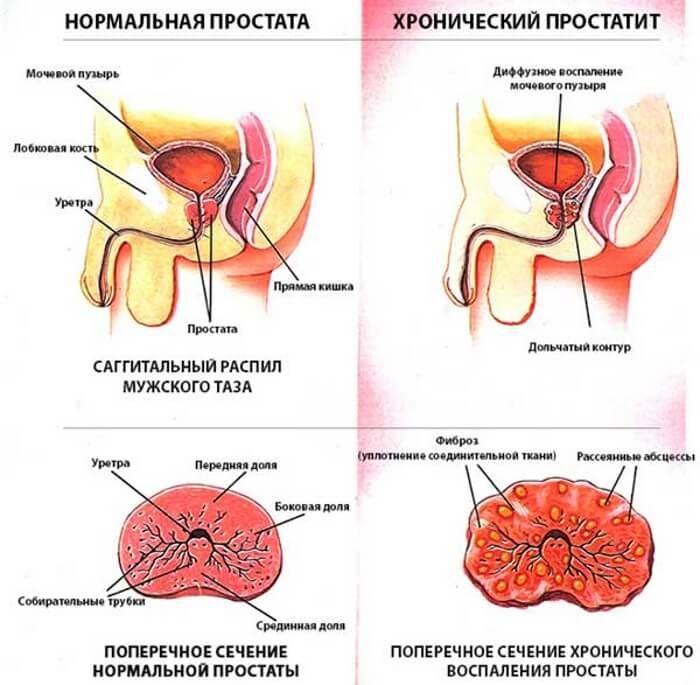 Лекарство от простатита уколы