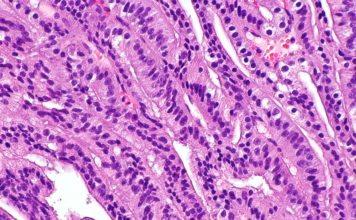 аденокарцинома простаты