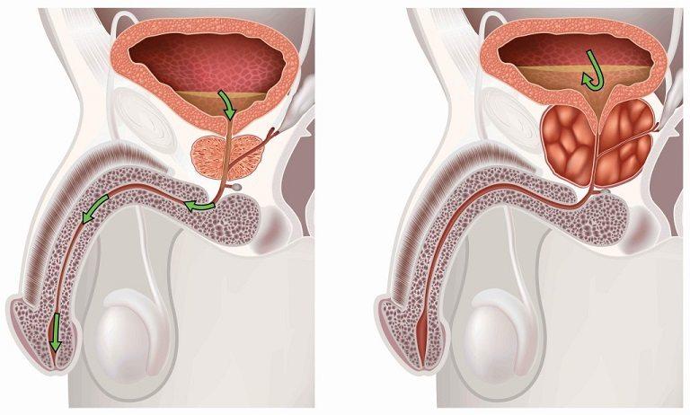 став для лечения простатита