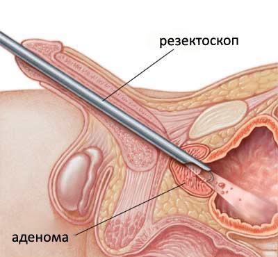Трансуретральная аденомэктомия