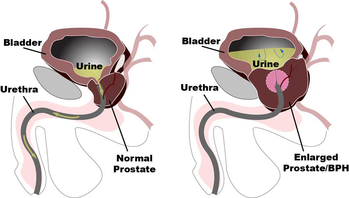 Здоровая и разросшаяся простата