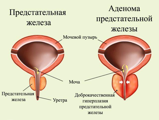 Заболевание больше известно, как аденома простаты и представляет собой доброкачественное изменение ткани железы