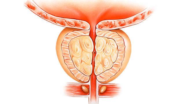 Длительное хроническое течение везикулита может привести к необратимому бесплодию