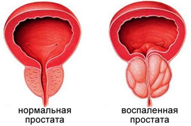 профилактика застойного простатита