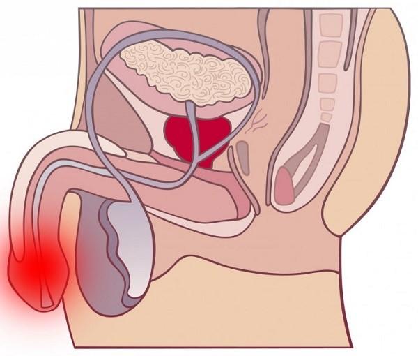При любых инфекционных поражениях уретры начинается воспалительный процесс, который провоцирует не только боль, но и сложности с мочеиспусканием