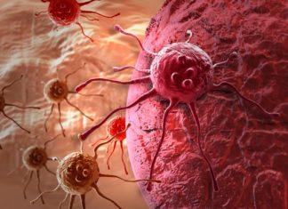 Рак простаты 4 степени