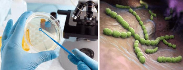Бактериальный простатит - выявление возбудителя