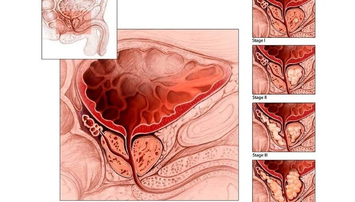 Развитие застойного простатита (стадии)