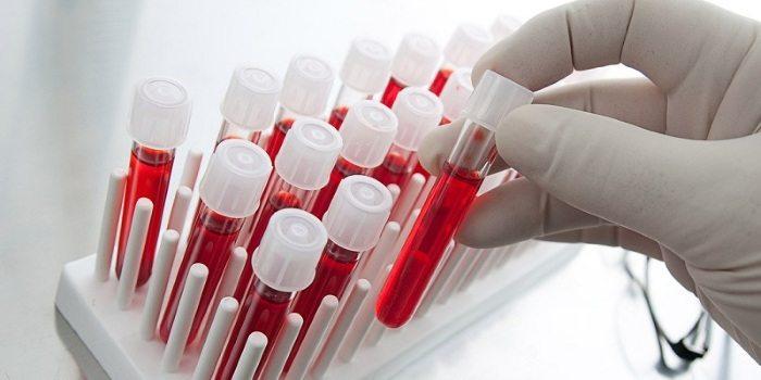 Анализы крови при простатите