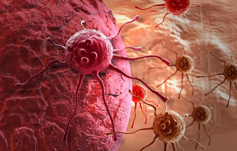Раковые клетки распространяются через лимфатическую систему маскируясь под иммунные клетки