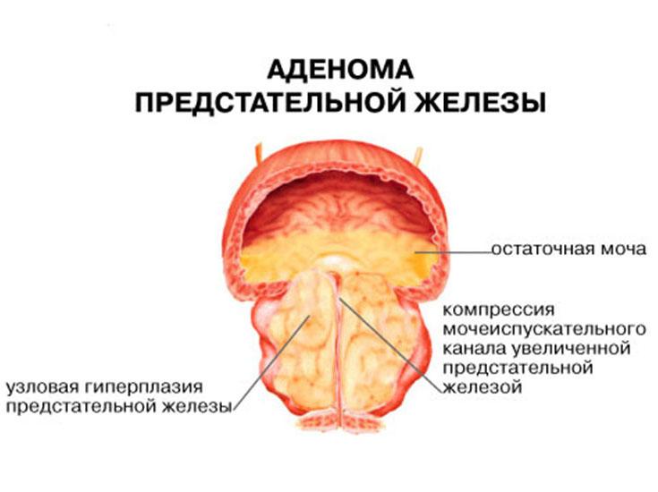 Схема аденомы простаты