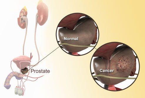 Здоровая простата и пораженная раком