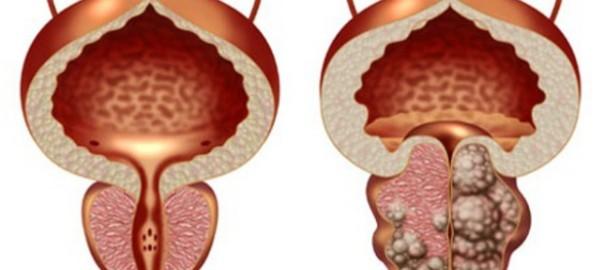 Ранним симптомом патологического процесса является частое ночное мочеиспускание