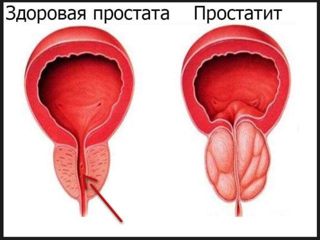 К тому же боль может присутствовать и при отсутствии эрекции
