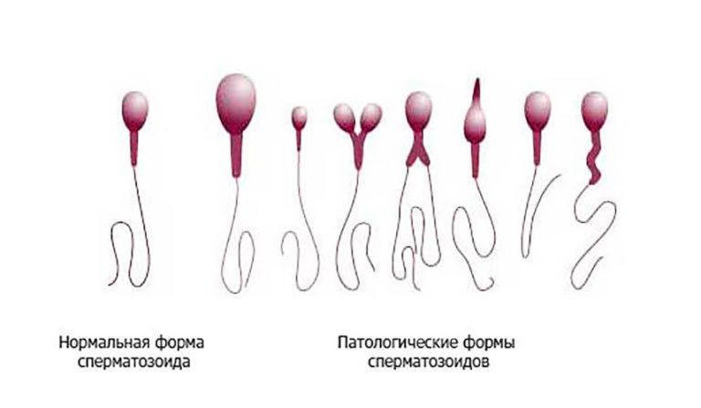 Как распознать здоровую сперму у мужчин, бляди трахаются смотреть онлайн