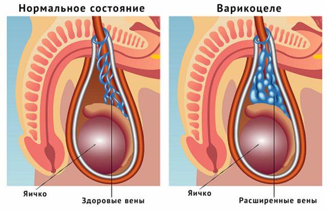 Анатомически и физиологически он на первый взгляд никак с венозной системой яичка не пересекается