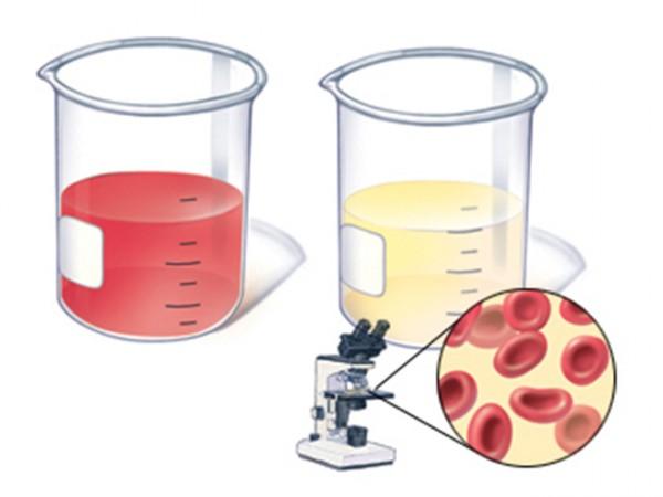 Цитологический тест, чаще всего назначается тем больным, у которых обнаружена опухоль мочевыводящих путей