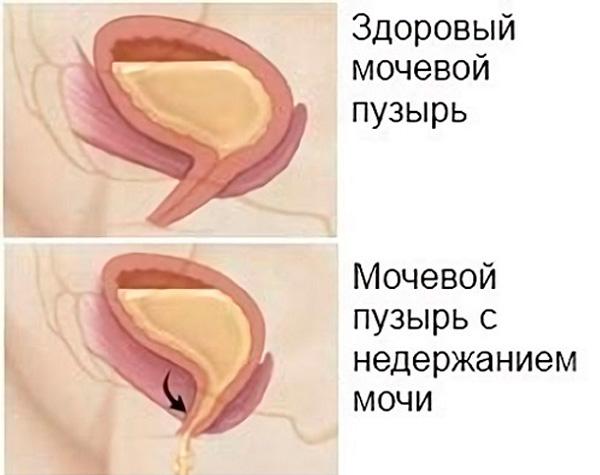 Лечение недержания мочи у мужчин