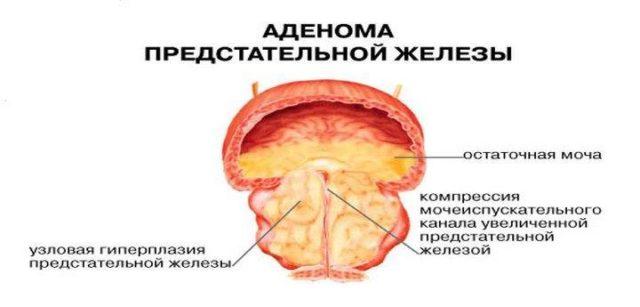 Как делается биопсия аденомы простаты?