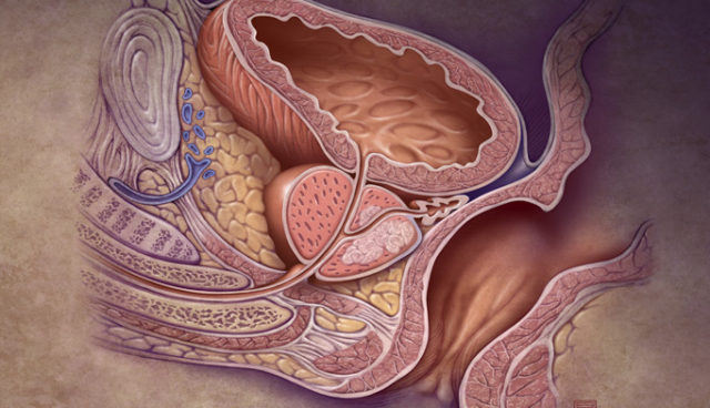 В каких случаях проводят кастрацию при раке простаты?